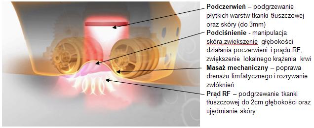 Zasada działania urządzenia Modente® – BodyLIFT